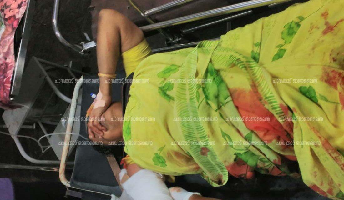 ചാവക്കാട് ബസ്സ്റ്റാന്ഡില് ബസിനടിയില് പെട്ട് സത്രീയുടെ വലതു കൈ ചതഞ്ഞരഞ്ഞു