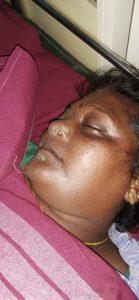 Alli 45 died snake bite edakazhiur